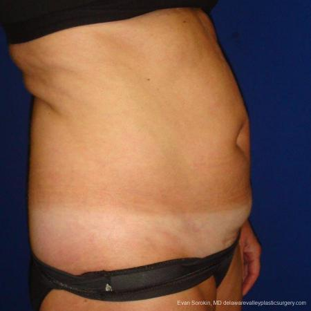 Philadelphia Liposuction 9488 - Before Image 3