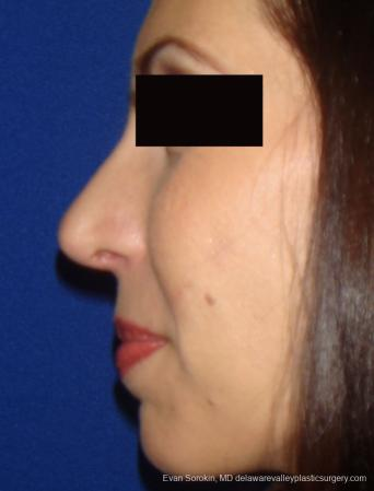 Rhinoplasty: Patient 1 - After Image 1