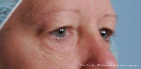 Philadelphia Blepharoplasty 9314 - Before and After Image 2
