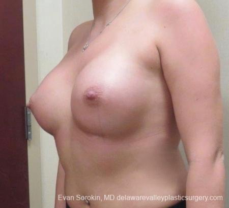 Philadelphia Breast Augmentation 8826 -  After Image 3