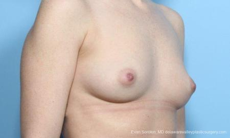 Philadelphia Breast Augmentation 9181 - Before Image 2