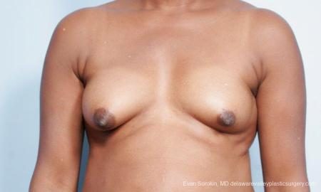 Philadelphia Breast Lift and Augmentation 9427 - Before Image 1
