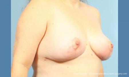 Philadelphia Breast Reduction 9430 -  After Image 3