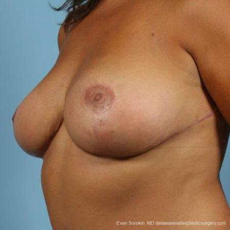 Philadelphia Breast Reduction 9470 -  After Image 2