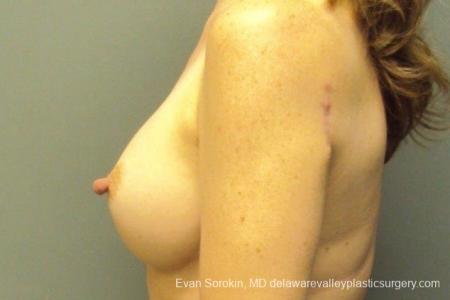 Philadelphia Breast Augmentation 8765 -  After Image 5