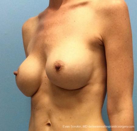 Philadelphia Breast Augmentation 13069 - Before Image 4