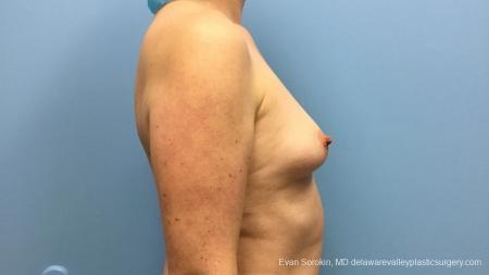 Philadelphia Breast Augmentation 13181 - Before Image 3