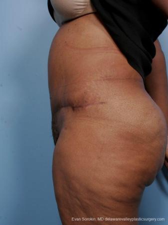 Philadelphia Abdominoplasty 9461 -  After Image 5