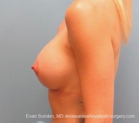 Philadelphia Breast Augmentation 8823 -  After 5