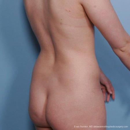 Philadelphia Liposuction 9482 - Before Image 4
