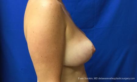 Philadelphia Breast Reduction 12512 -  After Image 4