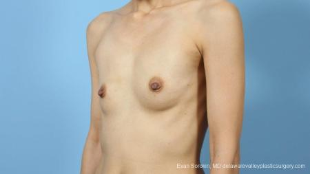 Philadelphia Breast Augmentation 9291 - Before Image 4