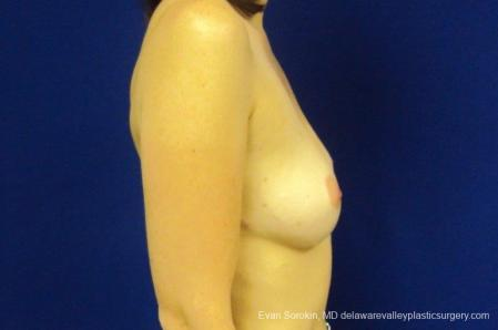 Philadelphia Breast Augmentation 8776 - Before Image 4