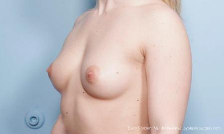 Breast Augmentation: Patient 129 - Before Image 4