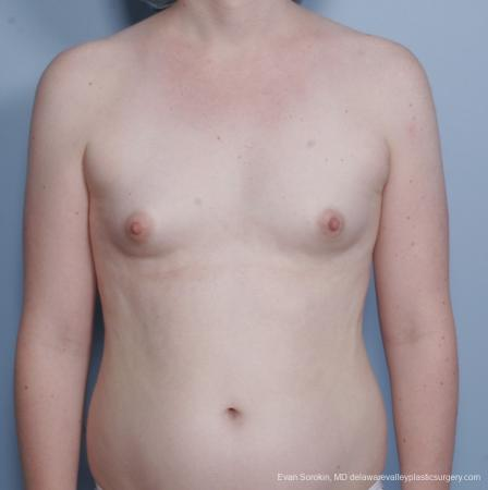 Philadelphia Top Surgery Male to Female 8642 - Before Image