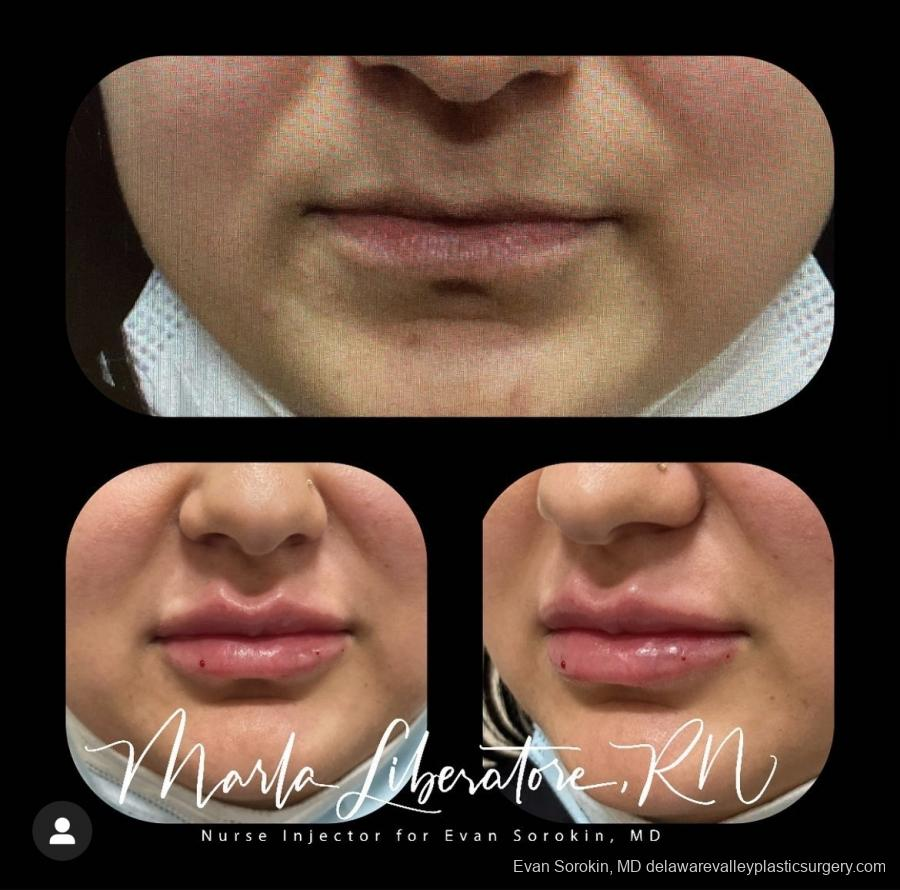 Lip Augmentation: Patient 16 - Before and After Image 1