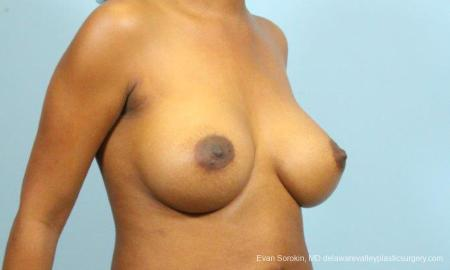 Philadelphia Breast Augmentation 9173 -  After Image 2