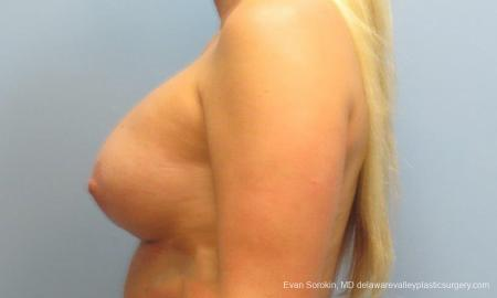 Philadelphia Breast Lift and Augmentation 9370 -  After Image 3