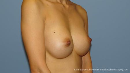 Philadelphia Breast Augmentation 9291 -  After Image 2