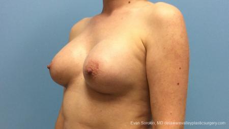 Philadelphia Breast Augmentation 13181 -  After Image 4