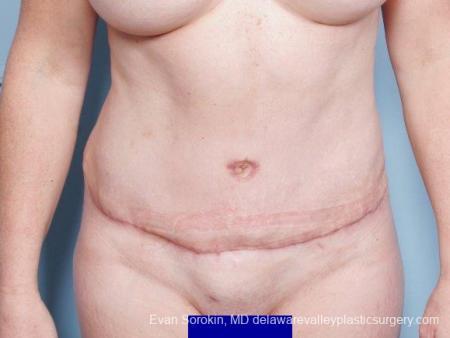 Philadelphia Abdominoplasty 9315 -  After Image 1