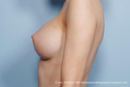 Philadelphia Breast Augmentation 8663 -  After Image 5