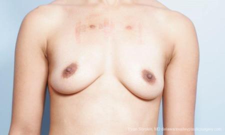 Philadelphia Breast Augmentation 9305 - Before Image