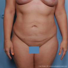 Philadelphia Liposuction 9481 - After Image