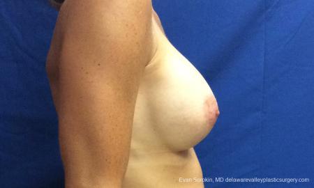 Philadelphia Breast Augmentation 10248 -  After Image 3