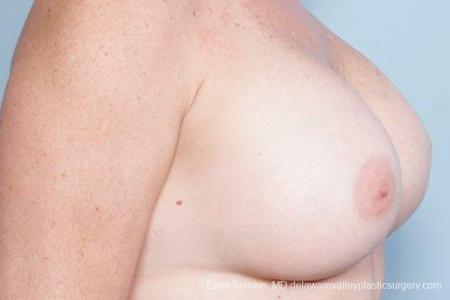 Philadelphia Breast Augmentation 9316 -  After Image 2