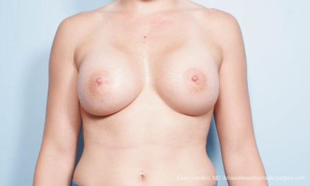 Philadelphia Breast Augmentation 9296 -  After Image 1