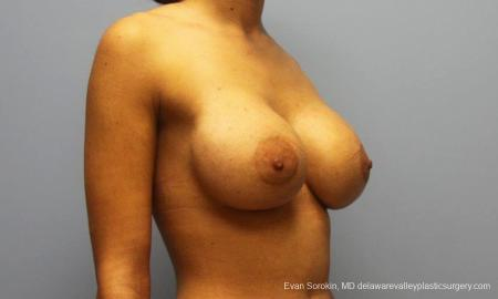 Philadelphia Breast Augmentation 9205 -  After Image 2