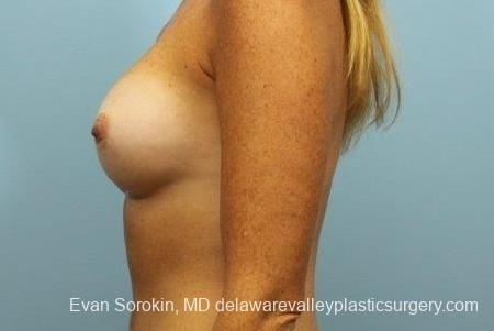 Philadelphia Breast Augmentation 8654 - Before and After Image 5