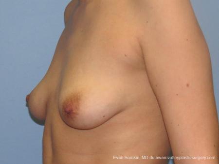 Philadelphia Breast Lift and Augmentation 10115 - Before Image 4