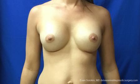 Philadelphia Breast Augmentation 12519 -  After Image 1