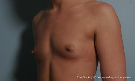Philadelphia Breast Augmentation 8664 - Before Image 4