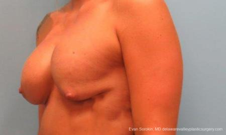 Philadelphia Breast Lift and Augmentation 9370 - Before Image 2