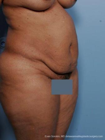Philadelphia Abdominoplasty 9461 - Before Image 2
