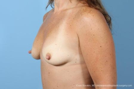 Philadelphia Breast Augmentation 8774 - Before Image 3