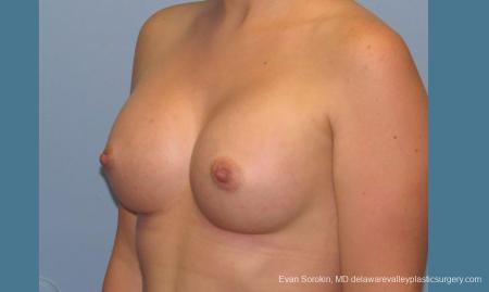 Philadelphia Breast Augmentation 10193 -  After Image 4