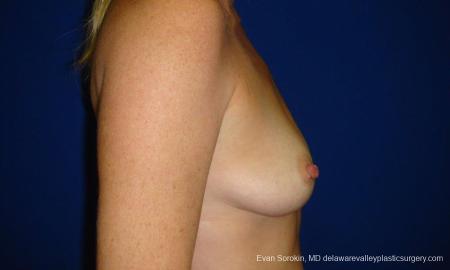 Philadelphia Breast Augmentation 9295 - Before Image 3