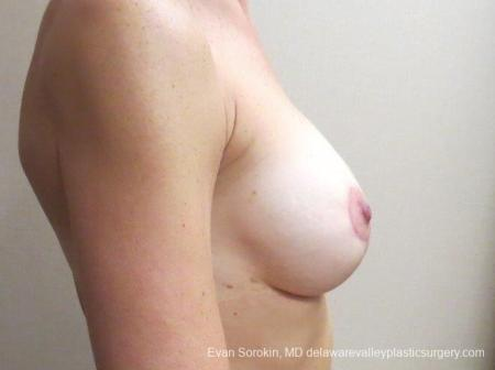 Philadelphia Breast Lift and Augmentation 8683 -  After Image 4