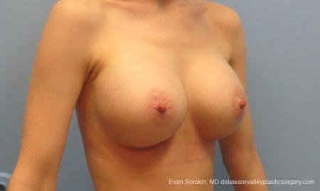 Philadelphia Breast Augmentation 8781 -  After Image 2