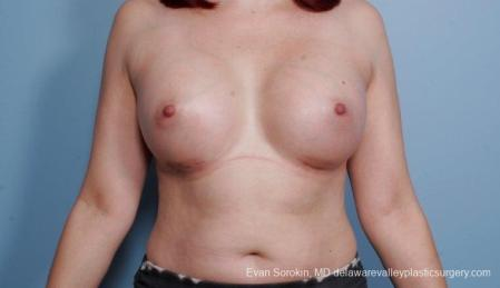 Breast Augmentation: Patient 54 - After Image 1