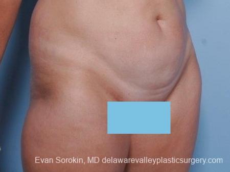 Philadelphia Abdominoplasty 8682 - Before Image 2