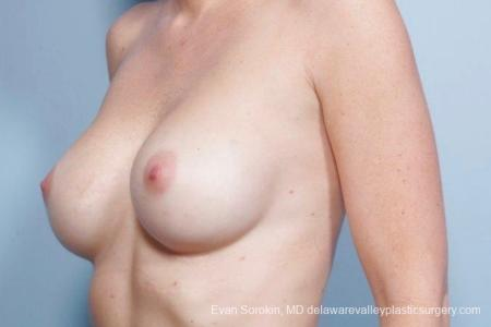 Philadelphia Breast Augmentation 8776 -  After Image 3