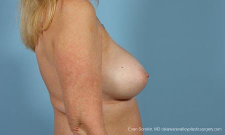 Philadelphia Breast Augmentation 9457 -  After Image 5