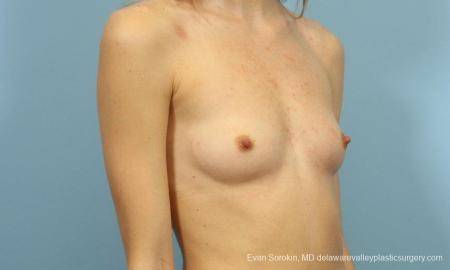 Philadelphia Breast Augmentation 8660 - Before Image 2