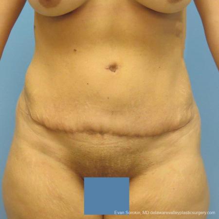 Philadelphia Abdominoplasty 9478 -  After Image 1
