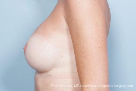 Philadelphia Breast Augmentation 9402 -  After Image 5